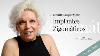 Caso de Implantes zigomáticos