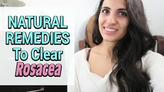 Natural Remedies For Eliminating Rosacea | Holistic Tips
