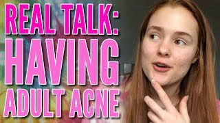 Real Talk: What it's Really Like Having Adult Acne