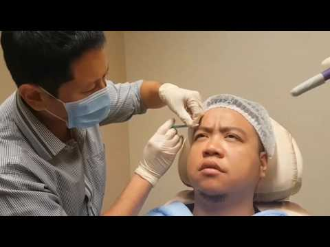 Botox Injection at  Premier Clinic KL