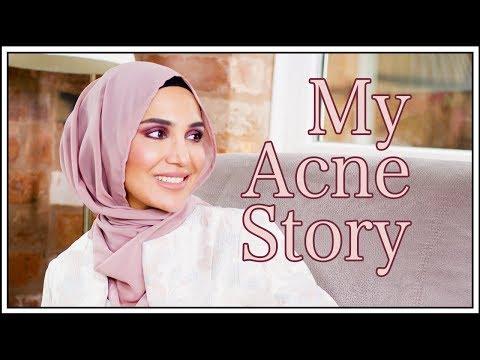 My Acne Story | Amena
