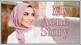 Acne almost ruined my life! What I did...   Amena