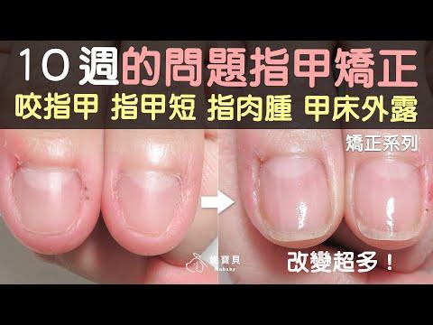10週的問題指甲矯正,咬指甲、指甲短、指肉腫、甲床外露還是要至少半年才夠!