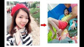 """Đến Thăm và giúp đỡ Cô gái Tiền Giang xinh đẹp mắc phải bệnh LẠ """" Rối Loạn Chuyển Hóa Đồng """""""