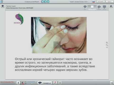 Хронический синусит, симптомы и лечение