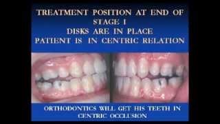 Part 1 - Dr Brendan Stack's Treatment for Complex Temporomandibular (TMJ/TMD) Disorder Thumbnail