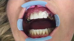 Houston Cosmetic Dentist...Smile Makeover With Veneers, Crowns and Implants