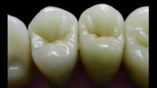 Demo DVD n.2  Centro di fresaggio dentale