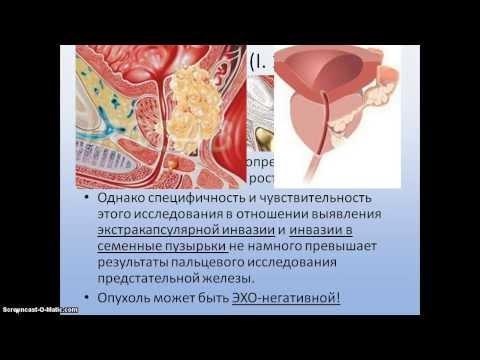 Презентация диагностика рака простаты 1 часть