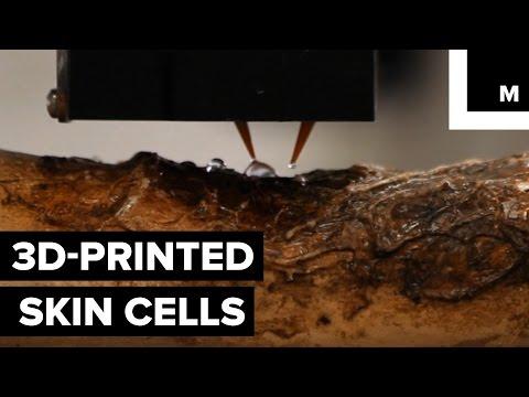 3-D skin printer