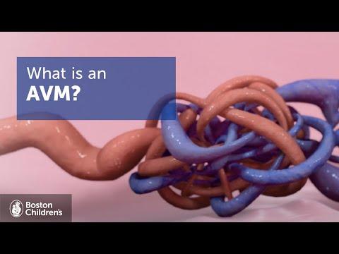 Arteriovenous Malformations (AVMs) | Boston Children's Hospital