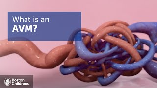 Arteriovenous Malformations (AVMs) | Boston Children's Hospital