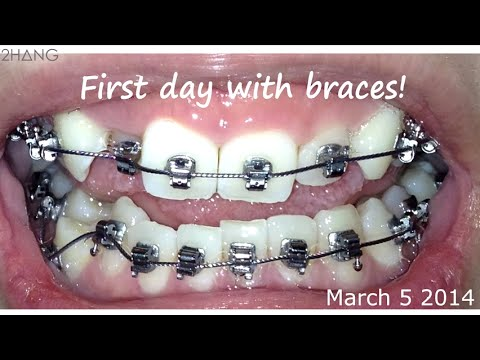 BRACES BEFORE AND AFTER TIME LAPSE - YouTube