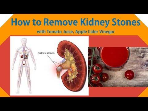 how-to-remove-kidney-stones-with-tomato-juice,-apple-cider-vinegar
