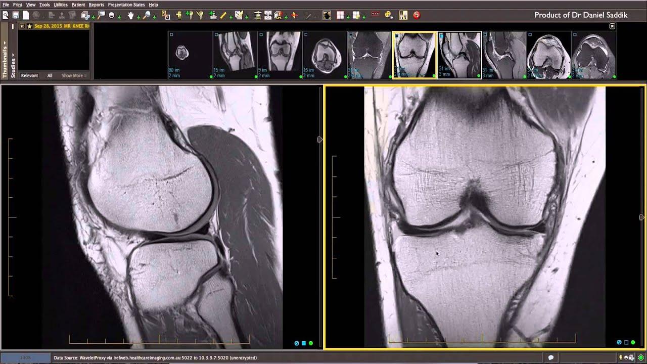 Musculoskeletal MRI: Dr Daniel Saddik - YouTube