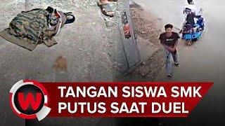Tangan Pelajar Putus Dalam Duel Celurit di Bekasi