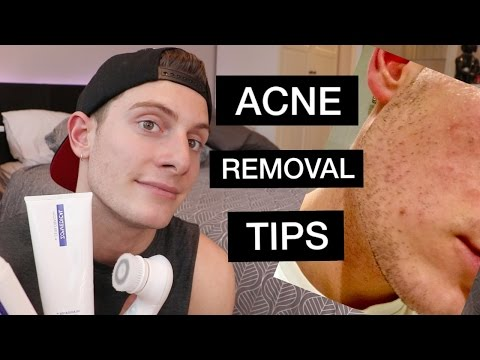 How to get rid of adult acne – My Acne Treatment backed by SCIENCE