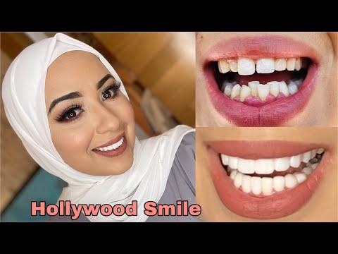 🇹🇷شحال ثمان ابتسامة هوليوودفي تركيا |Hollywood Smile 😀