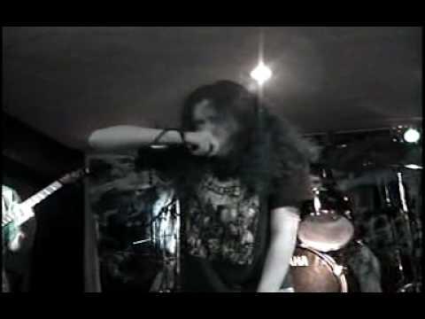 Surgery - Whore head collection (en vivo)