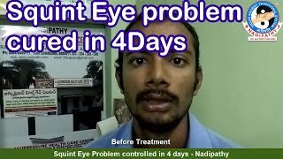Squint Eye problem controlled in 4 days - Nadipathy