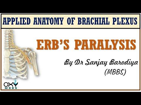 Erb's Paralysis