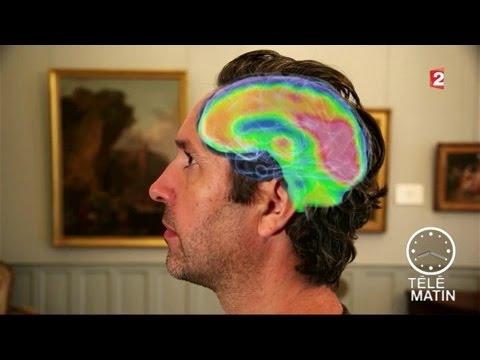 Santé - Psycho : la beauté est dans le cerveau