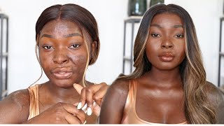 This Is How I Make My Scars Less Visible For Summer   Shalom Blac