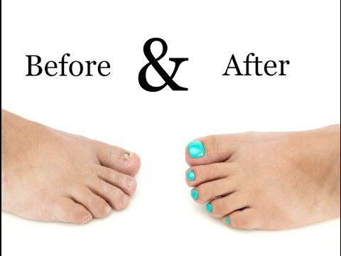 Toenail Treatment – Miracle Gelous Reconstruction