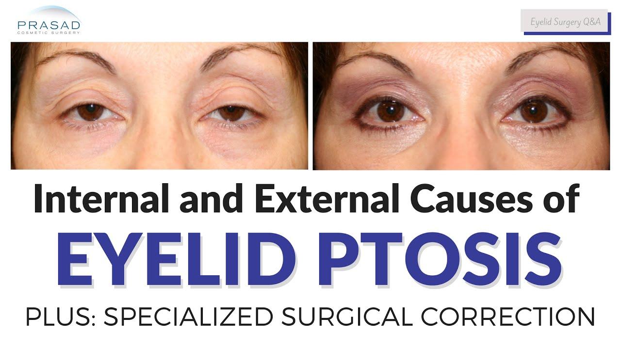 Ptosis Surgery | Droopy Eyelid - Dr  Amiya Prasad