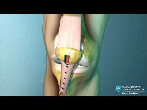Anterior Cruciate Ligament (ACL) Reconstruction Animation