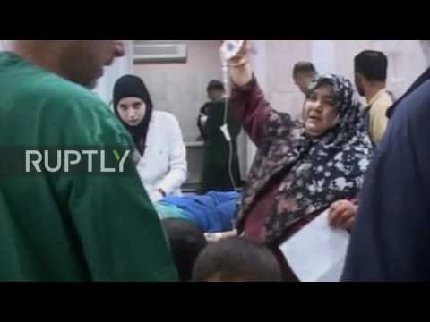 Syria: Al-Razi Hospital treats civilians following opposition attack in Aleppo *GRAPHIC*