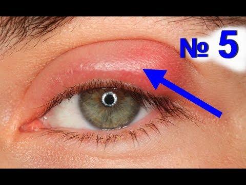 ткань задействует на глазу ячмень что делать если собираетесь