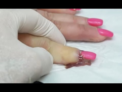 Worst Nail Infections of All Time! Paronychia