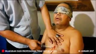 Pembedahan Penyakit Jantung, Tusukan Gangguan Pendengaran, dan Pengobatan Pengelihatan
