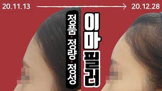 얼굴 볼륨 업! 이마필러 시술 영상 톡스앤필 송파점
