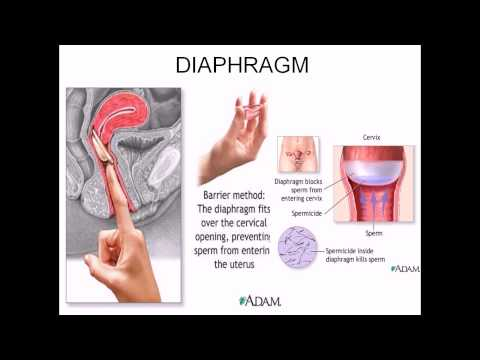 Diaphragm contraceptive