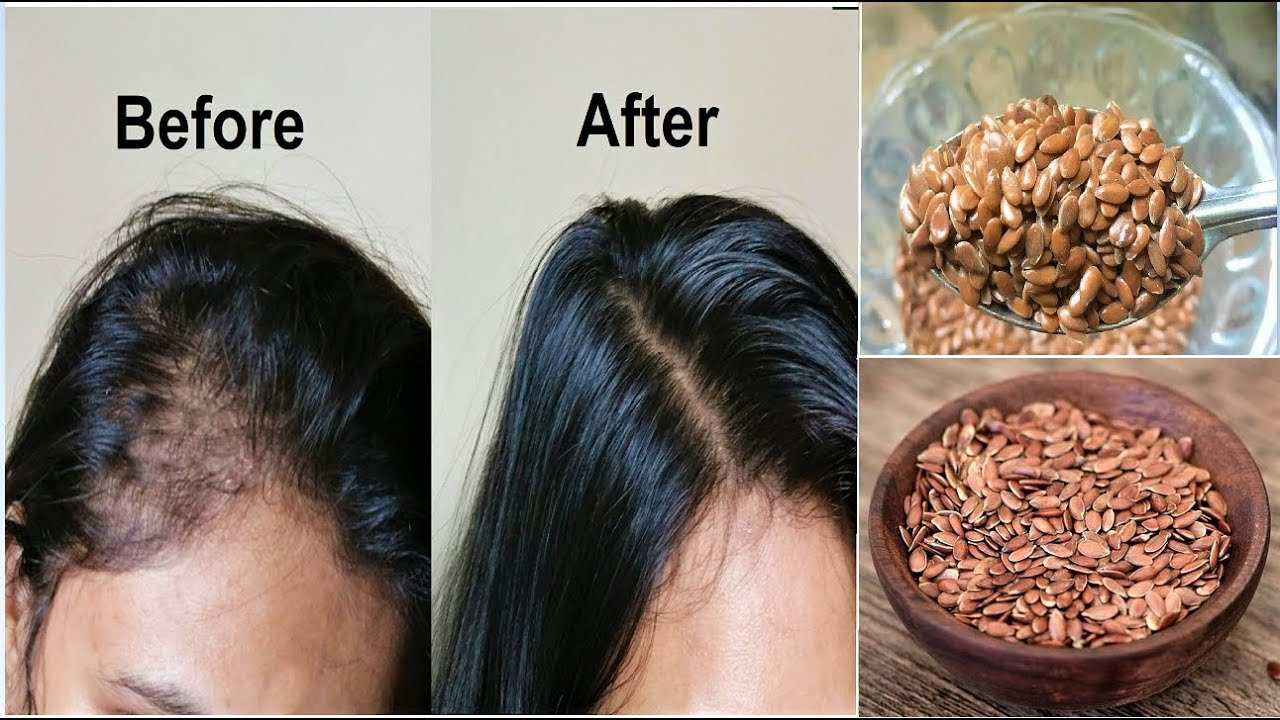 Your Hair Will Grow Like Crazy Just Eat 1 Tablespoon
