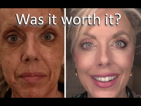 Immaculift Instant Face Lift Serum Watch This Absol