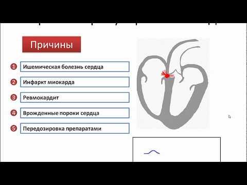 АВ блокады и ее степени на ЭКГ (атривентрикулярные блокады) - meduniver.com