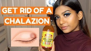 HOW TO GET RID OF A CHALAZION FAST AT HOME