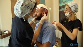 Enxerto capilar, transplante de cabelo LUIS DA ROCHA futebolista jogador da Primera divisão