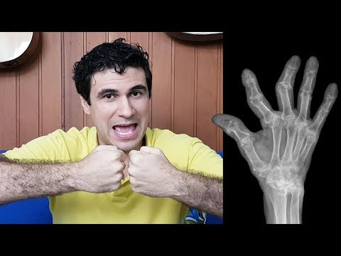 The Consequences of Habitual KNUCKLE CRACKING (w/subs)