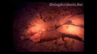 Dead Scuba Diver in the Blue Hole, Diving Accidents