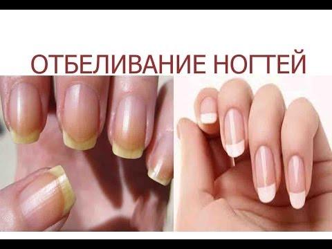 Как быстро отбелить ногти в домашних условиях