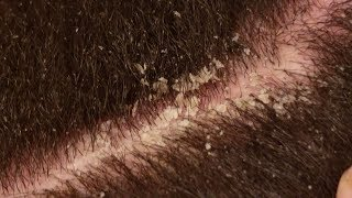 Dandruff Scratching ASMR Scalp Covered in Thick Flakes Dandruff Removal V.3