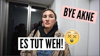 AKNE BEHANDLUNG - LASER THERAPIE! | 31.01.2018 | ✫ANKAT✫