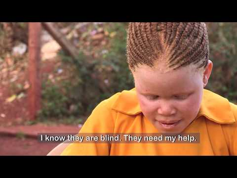 See My Life; Experiences Of People With Albinism In Africa.