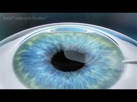 a szöveti trofizmus javítása a szemészetben hypothyreosis csökkent látás