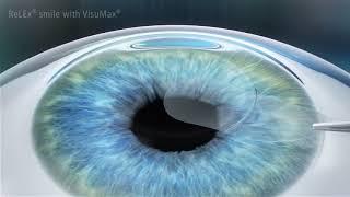 a különféle betegségek hatása a látásra gyümölcsök, amelyek javítják a látást