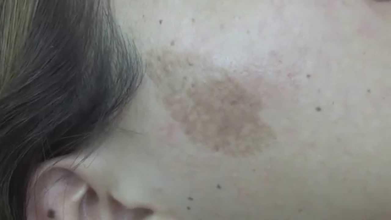 Morfea Esclerodermia Tratamiento Con Láser Helios 15085